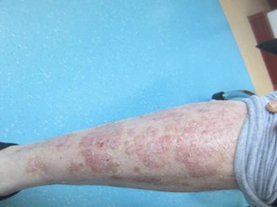 腿部牛皮癣有什么症状